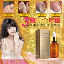 Fungal Nail Treatment Essence Nail and Foot Whitening Toe Nail Fungus Removal Feet Care Nail 1pcs