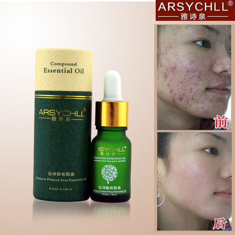 Face Care Acne Scar Removal Cream Acne Spots Skin Care Treatment Stretch Marks Whitening Remove Acne Face Essential Oil BQJ149(China (Mainland))