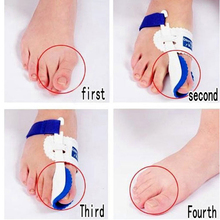 1Pair Fix Big Toe To Right Position Toes Outer Appliance Professional Technology Health Care Products