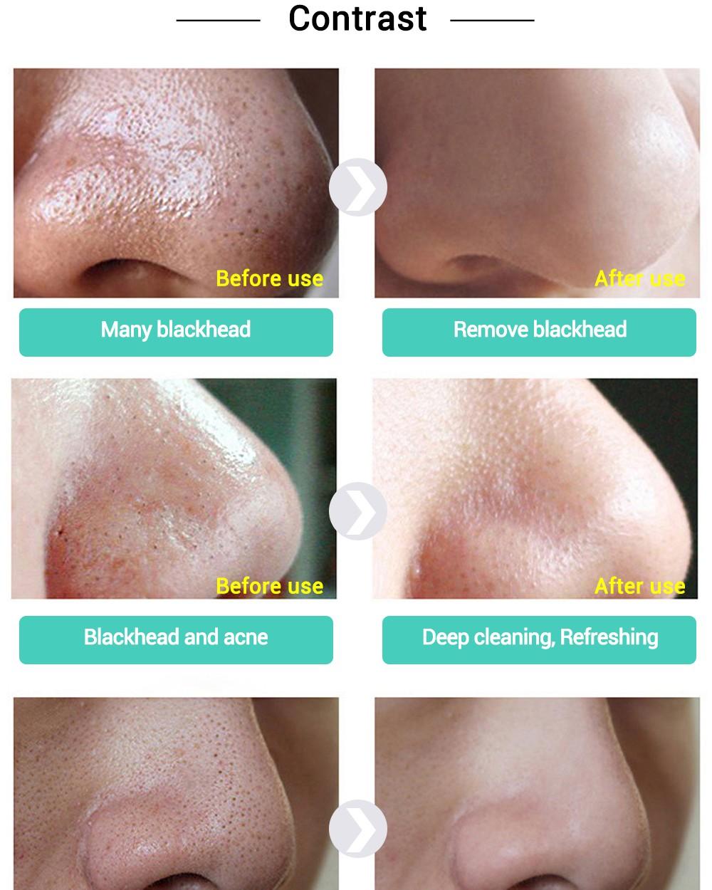 2017 New Style LANBENA Blackhead Remover Nose Mask Pore Strip Black Mask Peeling Acne Treatment Black Deep Cleansing Skin Care