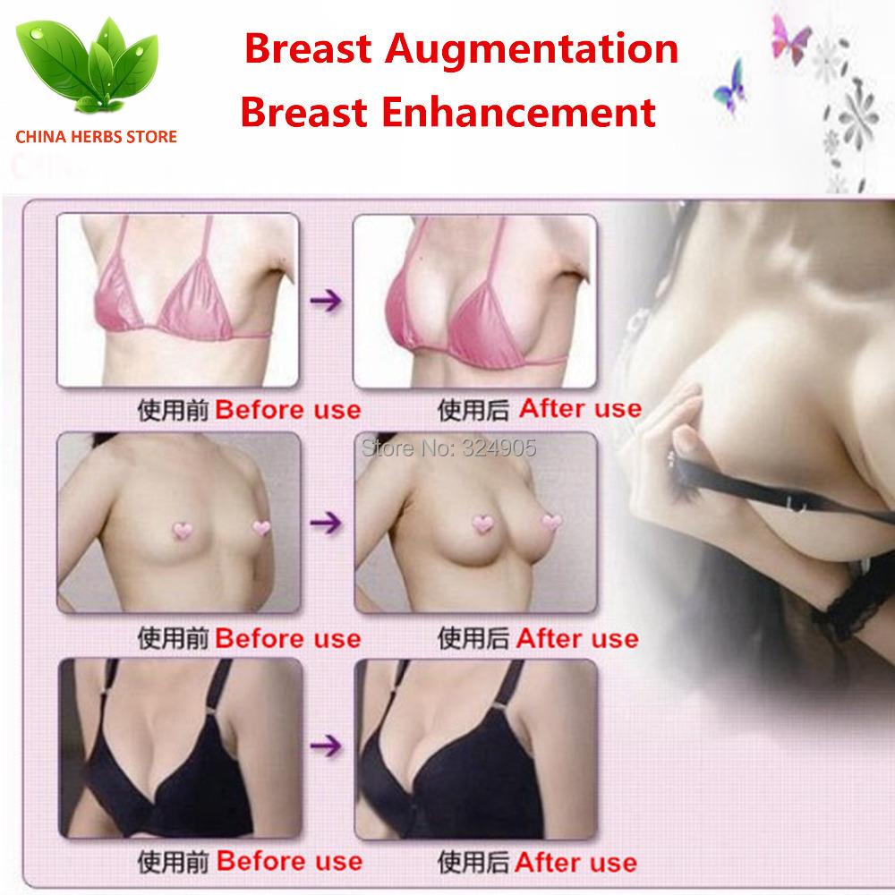 Breast enhancement photos