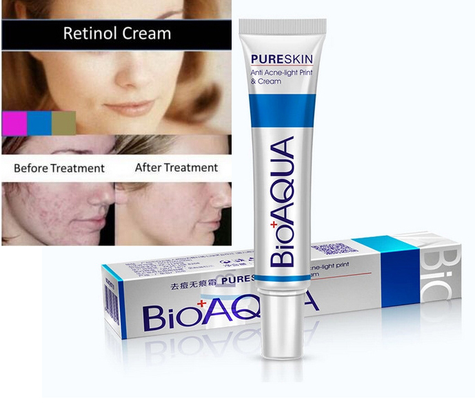 Beauty Face Anti Acne Light Print Scar Removal Cream Acne Spots Pure Skin Care Treatment Whitening
