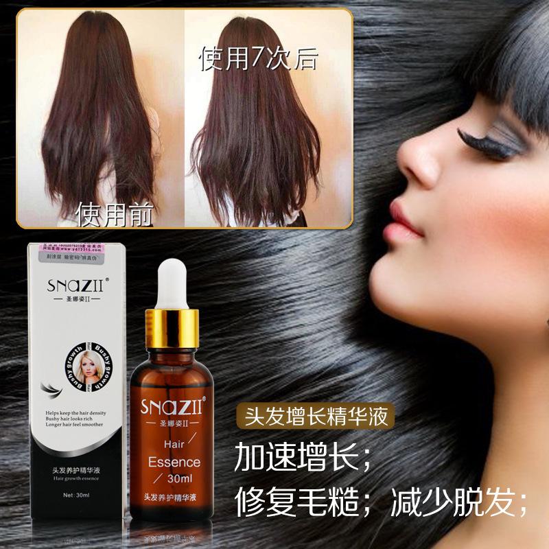 O crescimento Natural do cabelo produto de perda de cabelo essência 30 ML grosso Dense crescimento do cabelo Serum soro essencial do cuidado de cabelo líquida homens mulheres