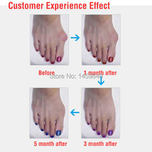 3 Pair Feet Care Hallux Valgus Braces Orthotics Cloven Toe Separator Corrective Insoles Toes Pedicure Device