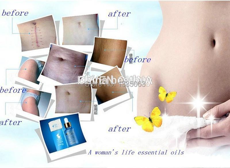 Poderosa para estrias maternidade estrias pós-parto óleo essencial obesidade gravidez remoção creme removedor de cicatriz reparação