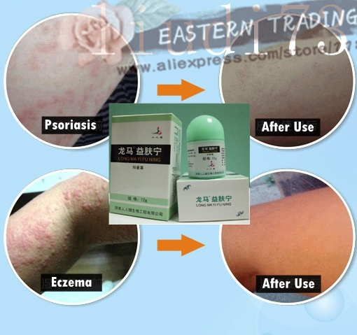 The drastic change in hormone levels due to stress can also cause psoriasis and eczema to become agitated 1