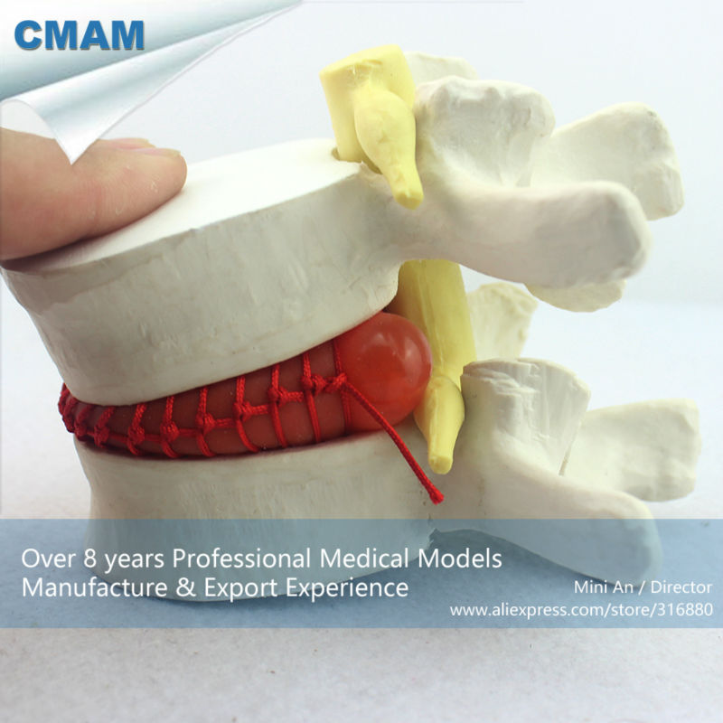 Фотография CMAM-VERTEBRA08 Demo model of lumbar disc herniation ,1.5 times Enlarge, Pathological model for Patient Communication