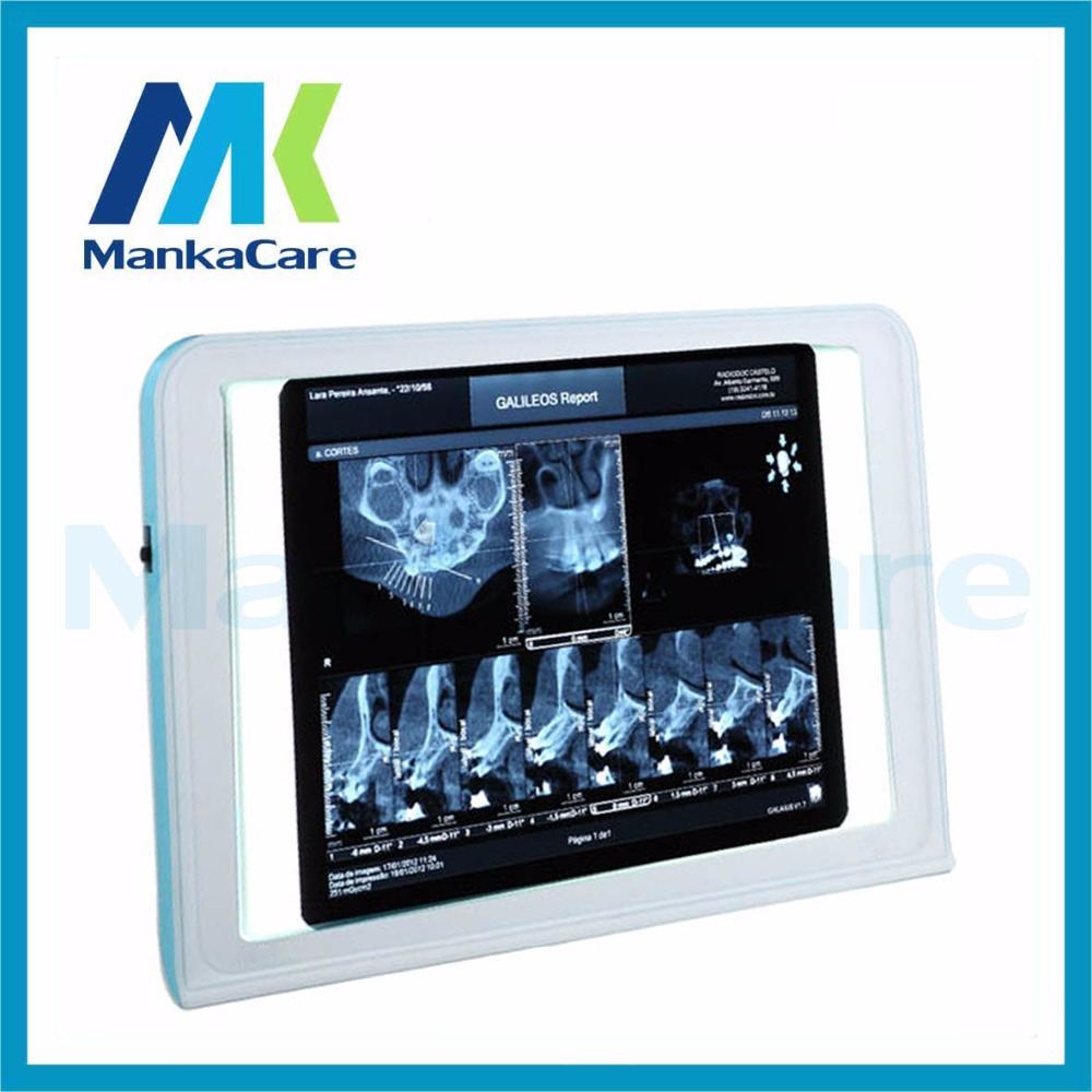 Manka Care-best Medical LED x-ray film viewer,medical x ray film view box,medical negatoscope and x ray film illuminator(China (Mainland))
