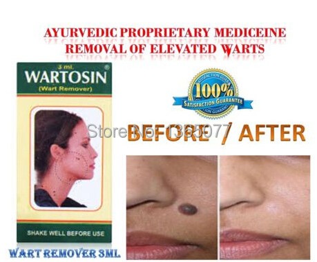 Herbal Wart Remover Elevated Mole Skin Tag Removal Free Shipping(China (Mainland))