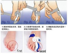 New Hotsale Beetle-crusher Bone Ectropion Toes outer Appliance Professional Technology Health Care Products