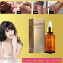 Fungal recover health to Nail onychomycosis Treatment Herbaceous energy Essence Foot Whitening Fungus Removal Care Gel