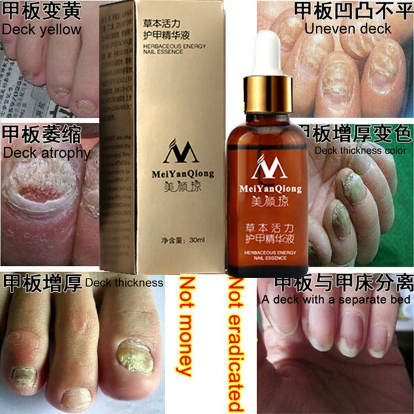 Original MeiYanQiong Fungal Nail Treatment Essence Nail and Foot Whitening Toe Nail Fungus,Profession Removal Care Nail Gel(China (Mainland))