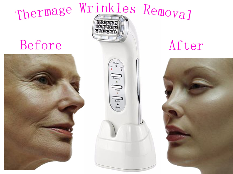New RF Radio Frequency Skin Face Care Lifting Tightening Wrinkle Removal Facial Physical Massage Machine 100-240V Rechargeable