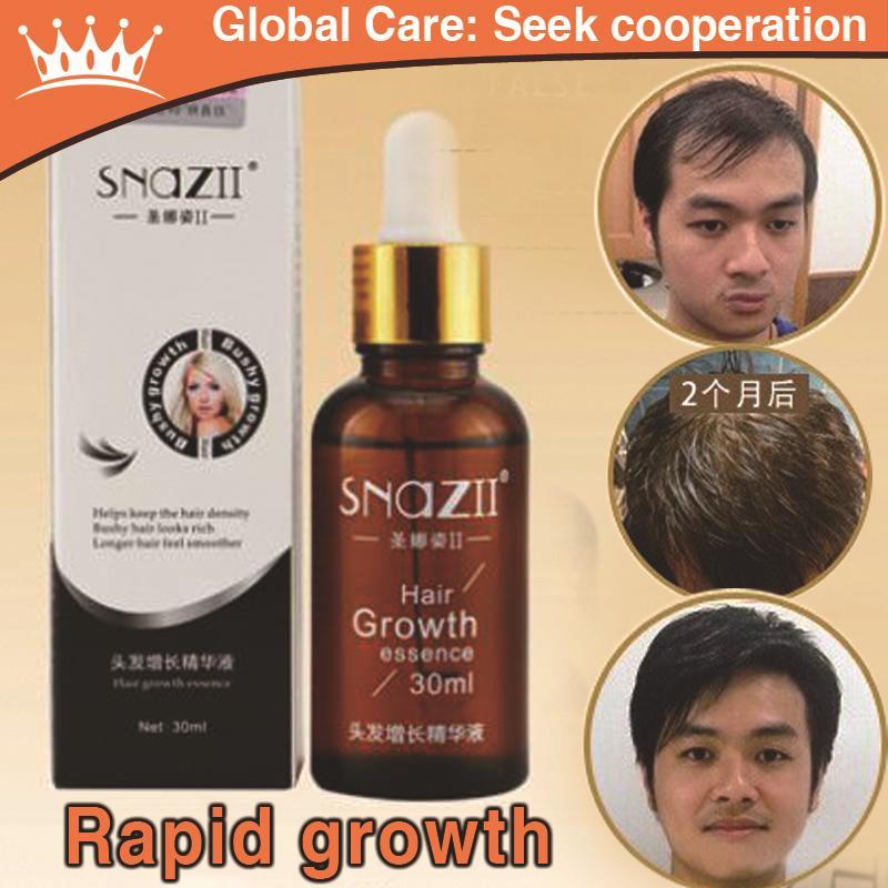 3 bottles Genuine Hair Care attitude hair growth essential oil anti-dandruff conditioner soft care liquid cream Free shipping(China (Mainland))