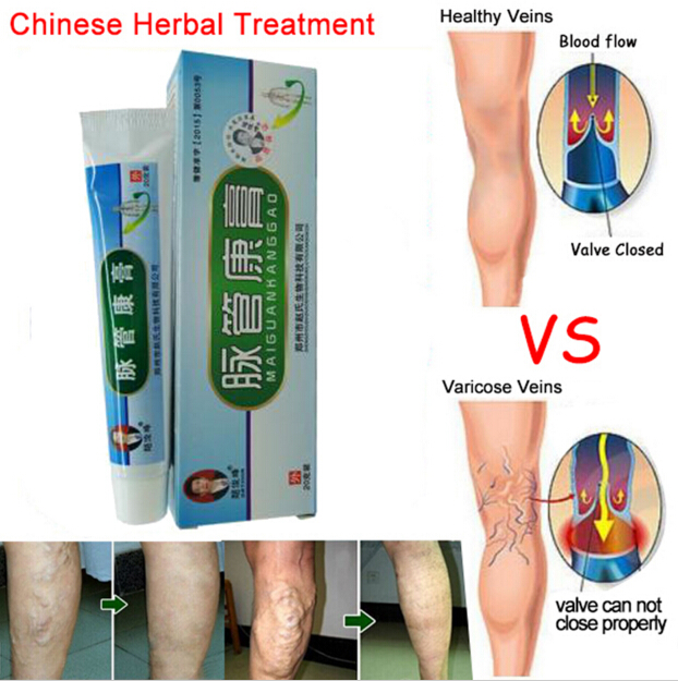 Medical Varicose Veins Treatment Leg Acid Bilges Itching Earthworm Lumps Old Bad Leg Vasculitis Cream Chinese Medicine