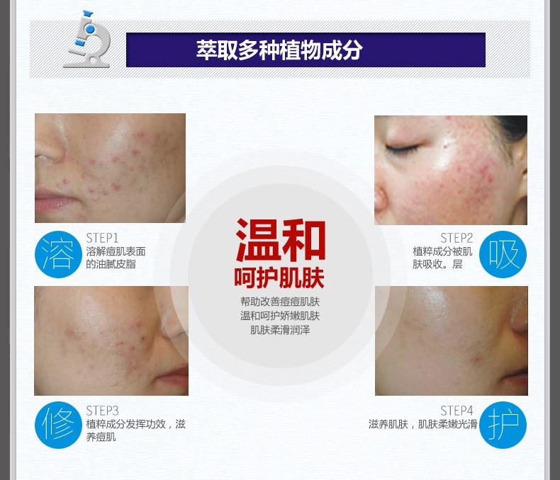 Tratamento da Acne Cuidados da pele Rosto Cuidados de Remoção de Cicatrizes de Acne Creme Anti Acne Gel de Clareamento Creme Hidratante 30g