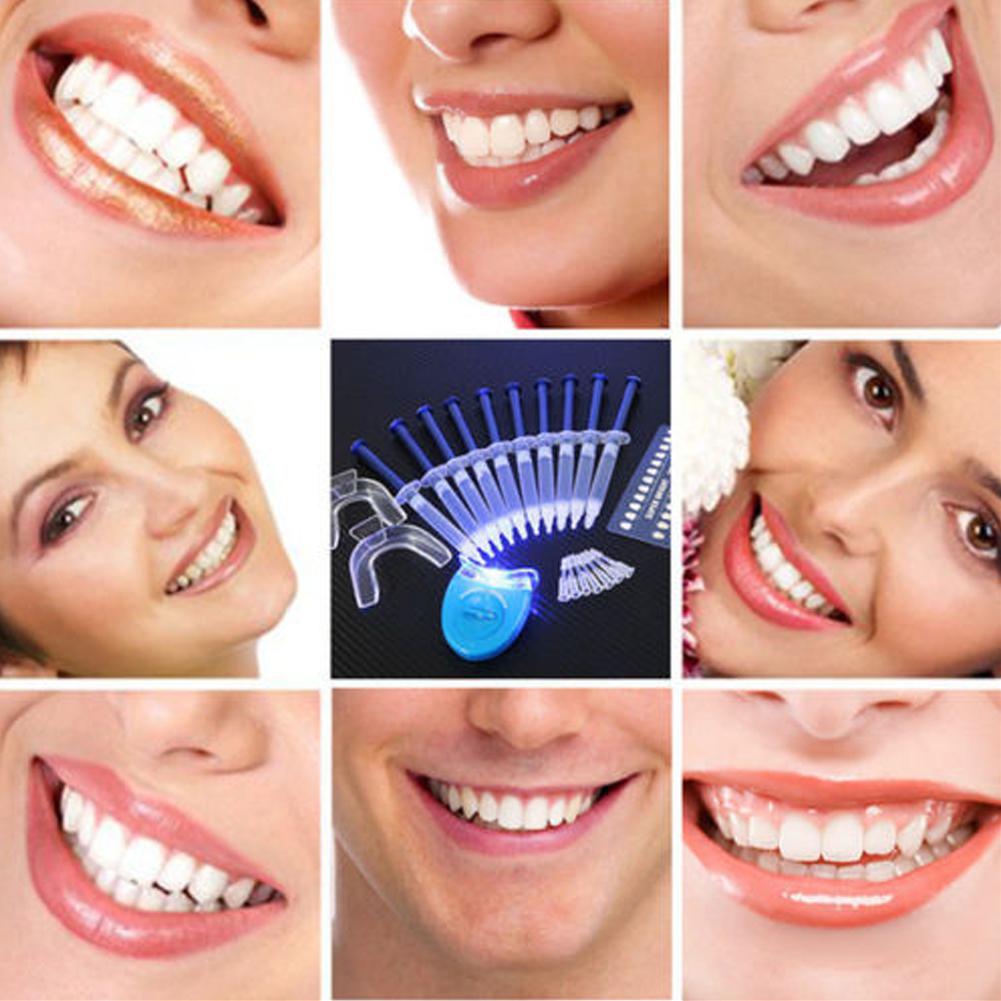 Стоматологическое оборудование для отбеливания зубов