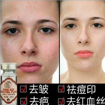 QYF Epidermal Growth Factor (EGF) Concentrate Original Liquid moisturizes rejuvenates sensitive skin <br><br>Aliexpress