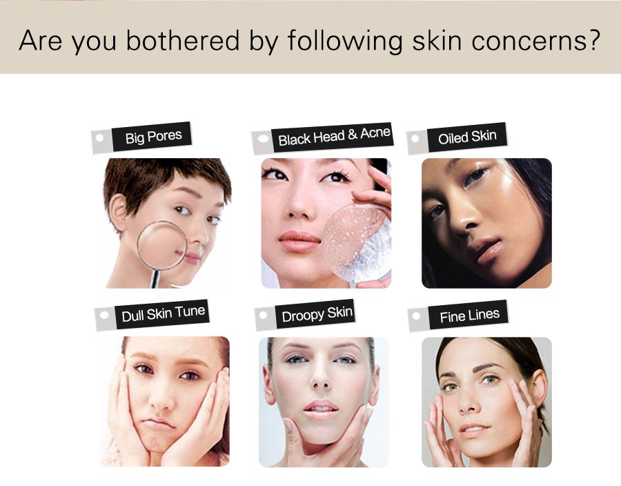Goodwind CM-2A Mini Home Face Facial Massager Beauty Health Care Skin Lift Device Ultrasonic Ion Cleanser Whitening Anti Acne  Goodwind CM-2A Mini Home Face Facial Massager Beauty Health Care Skin Lift Device Ultrasonic Ion Cleanser Whitening Anti Acne