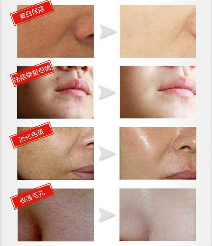 Female Face Care Offer Time-limited Cream Korean Cosmetics Mizon Aqiong Snail Reduce Scars Acne Pimples Face Anti Wrinkle(China (Mainland))