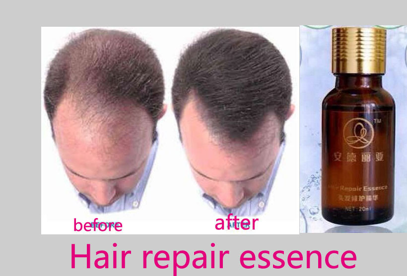 20ml Pilatory Hair Grow Faster Restoration Dense Hair Regrowth Treatment Serum Hair Growth Essence Anti Hair Loss Products(China (Mainland))