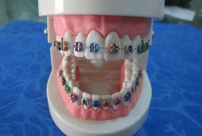 New arrival Dental Standard Orthodontics Teeth Model with Colorful Brackets &amp; Hoops<br><br>Aliexpress