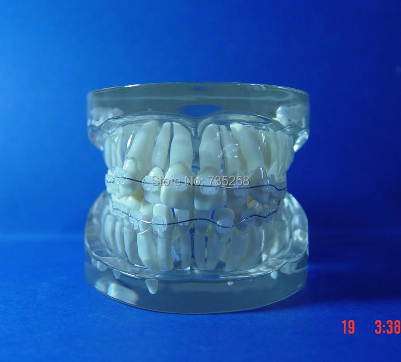 Teeth Orthodontic Model,Ceramic Braces Wrong jaw Demonstration Model,Orthodontics Practice Model(China (Mainland))