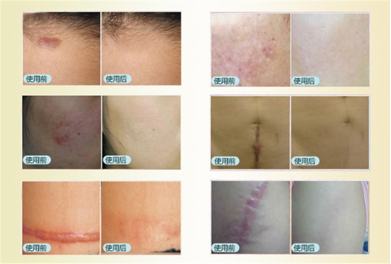 Ru rentang Remove the convex and concave scar scald repair medicine remove scars and paste body care 40g*3 C148(China (Mainland))