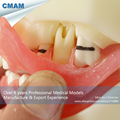 CMAM DH1205 Soft Gum Periodontal Disease Model for Oral Medical Science Training