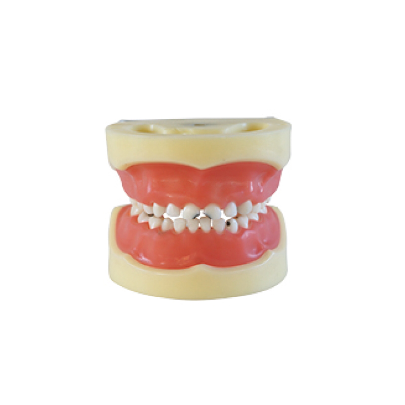 Dental teaching Model Caries model of child (Gum can be removed)
