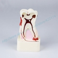 Free Shipping 4size pathological dental model tooth teeth dentist dentistry anatomical anatomy model odontologia