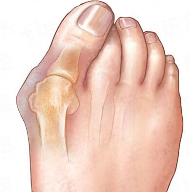 2pair Genuine new special hallux valgus bicyclic thumb orthopedic braces to correct daily silicone toe big bone<br><br>Aliexpress