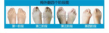 10Pair Free shipping 2014 New Hotsale Beetle crusher Bone Ectropion Toes outer Appliance Professional Health Care