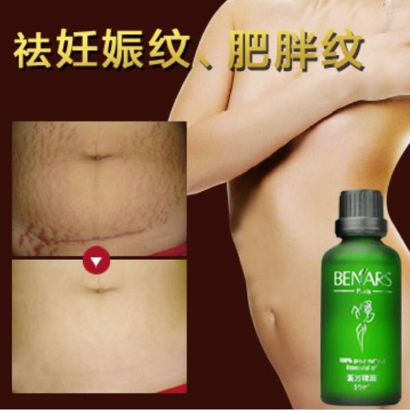 2015 Brand New 50ml BENARS Pregnancy Repairing Essential Oils, Stretch Marks Removal, Skin Care Skin Treatment,Slack Line(China (Mainland))