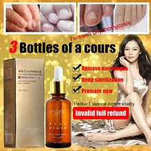 1 PC Fungal Nail Treatment Essence Nail and Foot Whitening for Cuticle Oil Toe Nail Fungus Removal Feet Care Nail Gel(China (Mainland))