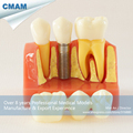 CMAM DH1303 4x Life Size Implant Tooth Anatomy Model with Removable Dental Crown