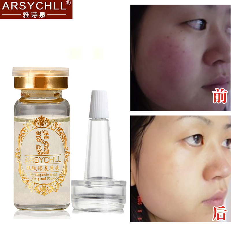 Hyaluronic Acid Liquid Moisturizing Whitening Anti Wrinkle Anti Aging Acne Removal Fade Red Blood Silk Face Skin Care Cream(China (Mainland))