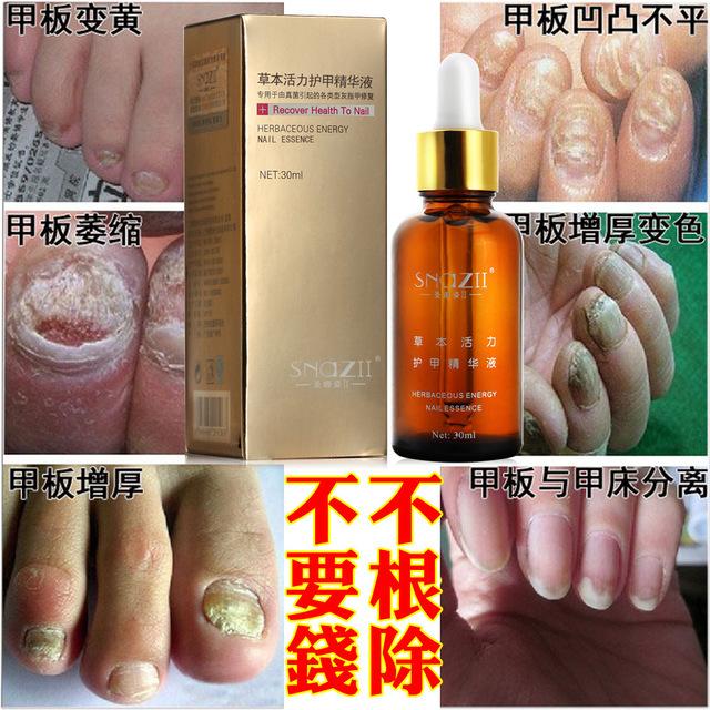 Форум лечения грибка ногтя