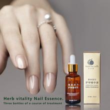 New!!! Fungal Nail Care Treatment Essence Oil Nail Tools and Foot Whitening Toe Nail Polish Fungus Removal Feet Care Nail Gel(China (Mainland))