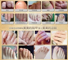 Fungal Nail Treatment TCM Essence Oil Hand Care and Foot Whitening Toe Nail Fungus Removal Feet Care Nail Polish Tools Nail Gel