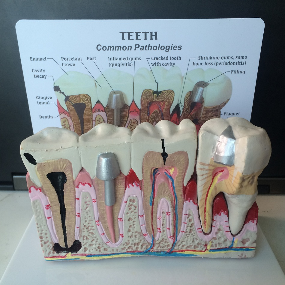 Dental teeth common pathologies model teaching model ,Tooth Dentist for Medical Science Teaching