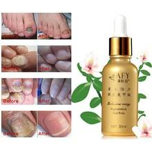Fungal Nail Treatment Essence Oil TCM Hand Foot Toe Whitening Nail Fungus Removal Feet Care Nail Polish Tools Nail Gel