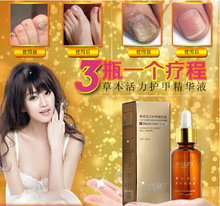 3 Bottles/Course Fungal Nail Treatment Essence Nail and Foot Whitening Toe Nail Fungus Removal Feet Care Nail Gel Free Shipping