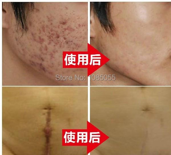 Горячая Nuobisong удалить шрам крем удалить пятна удалить Gravidarum пигментация ...