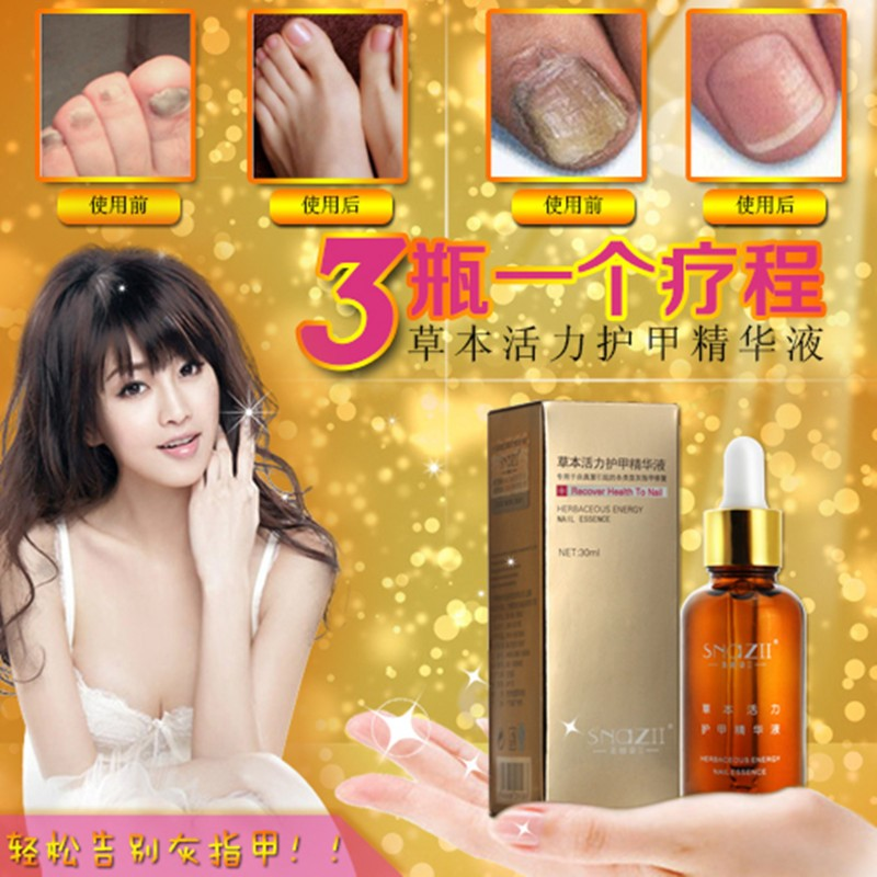 genuine Nail Care Nail repair supplies complex black polish armor oil 30ml A liquid sterilization Free shipping(China (Mainland))