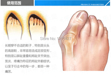 Free shipping 2014 New Hotsale Beetle crusher Bone Ectropion Toes outer Appliance Professional Health Care Product