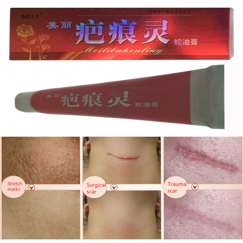 Free Shipping Free Shipping Beauty Skin Care  scar removal snake ointment For Removal Acne Scar Stretch Marks<br><br>Aliexpress
