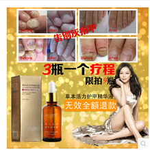 3pcs/lot Fungal Nail Treatment Essence Nail and Foot Whitening Toe Nail Fungus Removal Feet Care Nail Gel Free Shipping