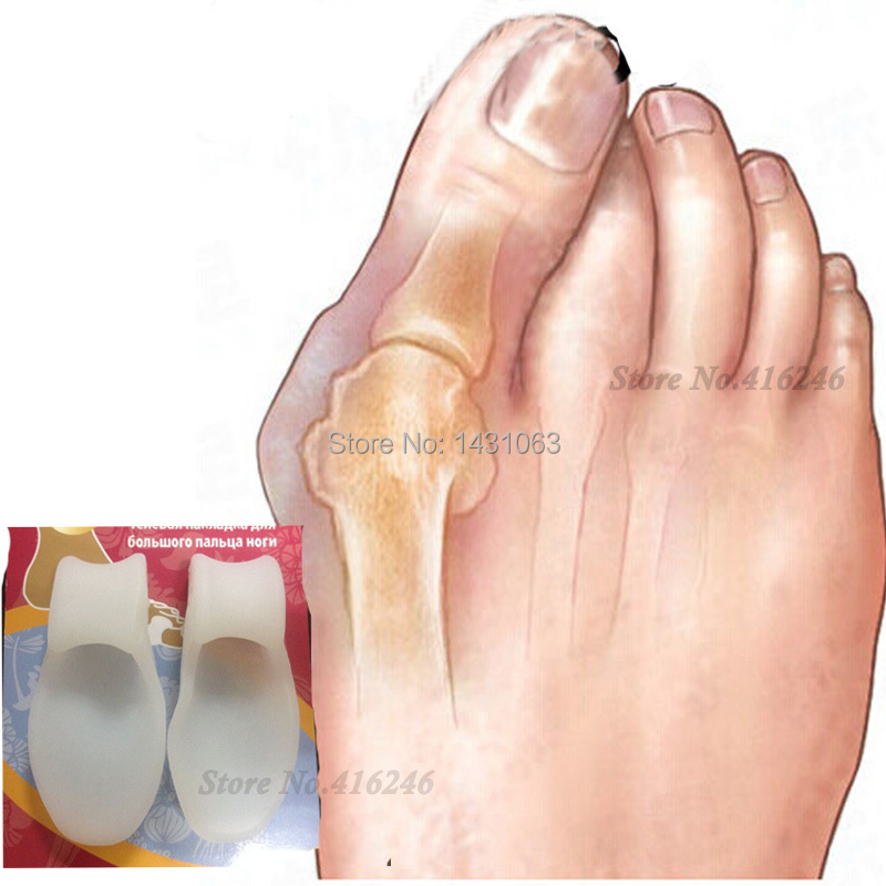 2pair Foot Care Soft Beetle-crusher Bone Ectropion Toes Outer Valgus Plus Silica Gel Toes Separator Feet Care Without Box(China (Mainland))