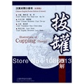 Chinese Traditional Medicine CTM Book Illustrations of Cupping Therapy Chinese English